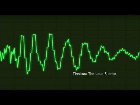 Tinnitus - The Loud Silence