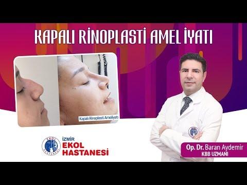 Kapalı Rinoplasti Ameliyatı - Op. Dr. Baran Aydemir - İzmir Ekol Hastanesi