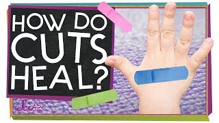 How Do Cuts Heal? by SciShow Kids