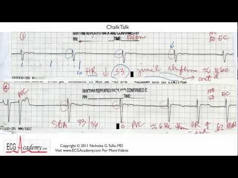 ECG Interpretation, Basic Level - Part 14