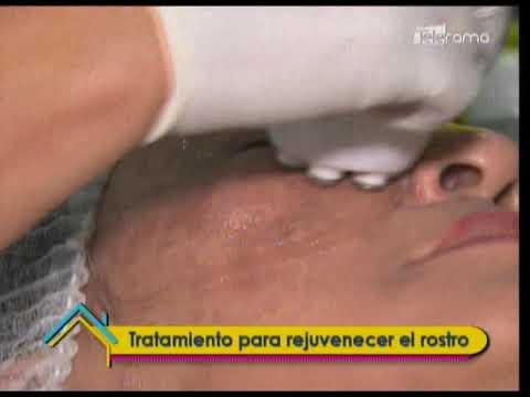 Tratamiento para rejuvenecer el rostro