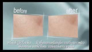 Artistry Intensive Skin Renewing Peel