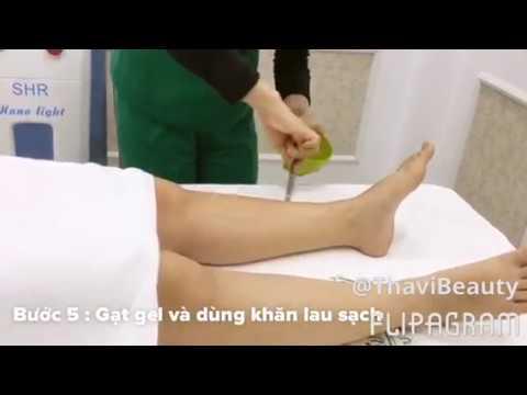 Quy trình triệt lông tại Thavi Beauty