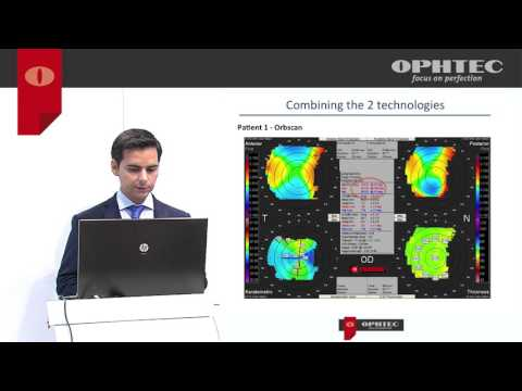 How to improve results with the Precizon Toric by evaluating astigmatism with a new Led topographer