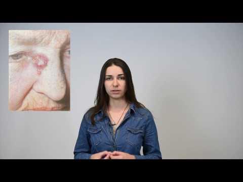 Виды рака кожи: признаки, современные методы лечения