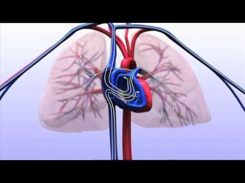 Wat is Terminaal hartfalen?