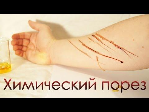 Как сделать химический порез