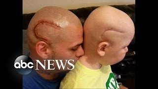 أب يشق رأسه تضامنا مع ابنه المصاب بالسرطان