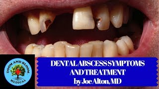 Pain in your mouth can make you miserable. One cause may be a tooth abscess, which is serious. But what if there is no dentist? Learn what a tooth abscess may look and feel like, plus some possible emergency treatment methods during long-term disasters where there is no dental care available. Hosted by Joe Alton, MD of https://www.doomandbloom.net/Pro Dental Kit : http://store.doomandbloom.net/medical-and-dental-kits/survival-deluxe-dental-kit/Medical and First Aid Kits: http://store.doomandbloom.net/Twitter: https://twitter.com/preppershow