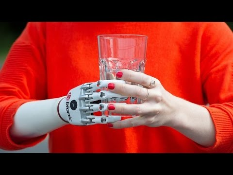 la prima mano bionica