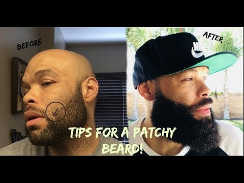 Beard oil - The Patchy Beard / Beard Patch Tips
