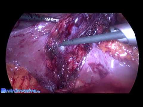 Лапароскопическая холецистэктомия после различных операций на желудке