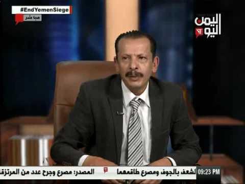 اليمن اليوم 30 4 2017