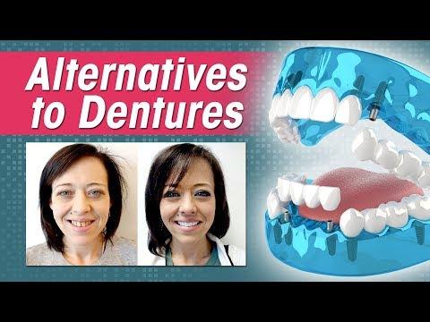 Mogelijkheden voor je tanden