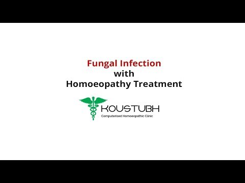 Fungal Infection cured with Homoeopathic Treatment | Koustubh Computerised Homoeopathy Clinic