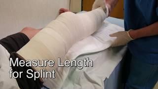 video thumbnail [Hygia one minute splint] ORTHOPEDIC SPLINT youtube