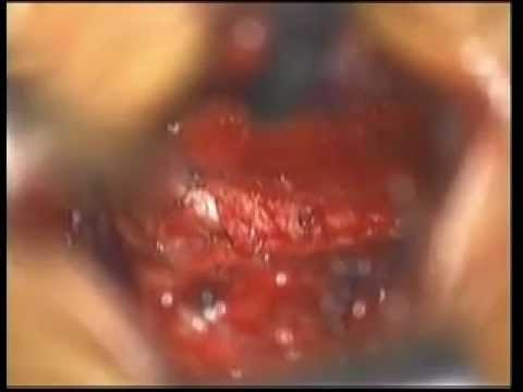 Microdiscectomy in the Lumbar Region