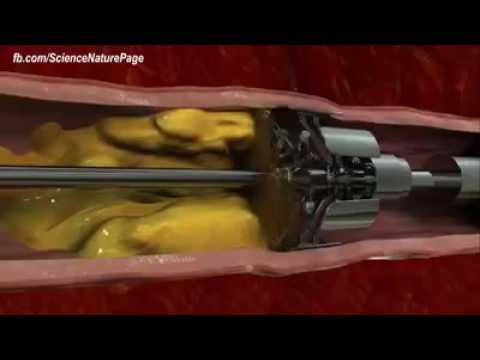 Операция по Предотваращению инфаркта и инсульта.