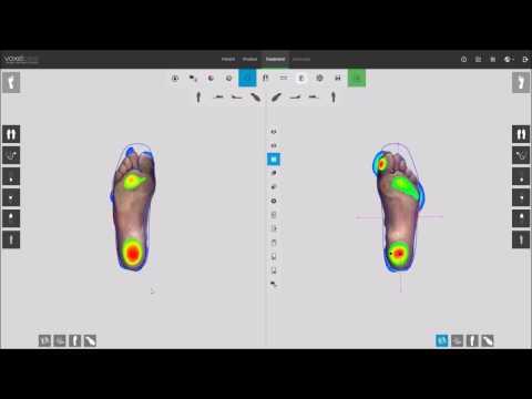Voxelcare 3D Foot Pressure Data Insole CAD Design Program
