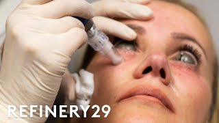 Video The Truth About This Controversial Injection Trend | Shady | Refinery29 MP3, 3GP, MP4, WEBM, AVI, FLV Januari 2019