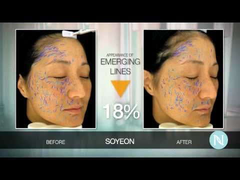 Clinical Trial Participant Soyeon Health Tips by Nerium and Real Case tudy