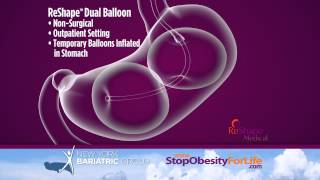 Gastric Balloon & Orbera in NYC & NJ