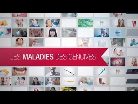 comment traiter inflammation gencives