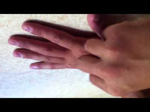 comment traiter une verrue vulgaire