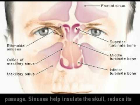 how to relieve sinus infection