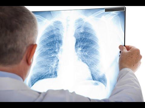 3-quels.sont.les.signes.de.l.embolie.pulmonaire.
