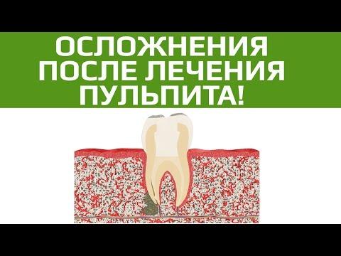 Если плохо пролечены каналы зуба