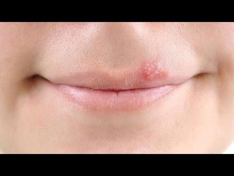 Быстрое лечение герпеса на губах. Лечение герпеса народными средствами