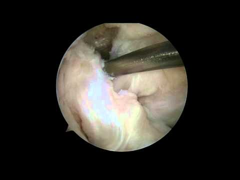 Posterior Cruciate Ligament Correction Using Remnant Augumentation Technique
