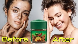 How to Remove Skin Pigmentation