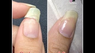 Tea Bag Nail Repair by The Crafty Ninja - YouTube