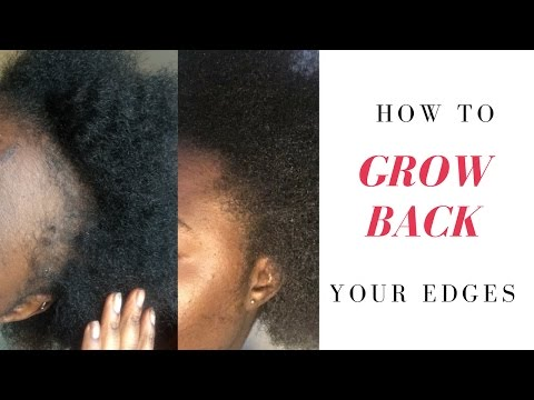 HOW TO GROW BACK YOUR EDGES & BALD PATCHES