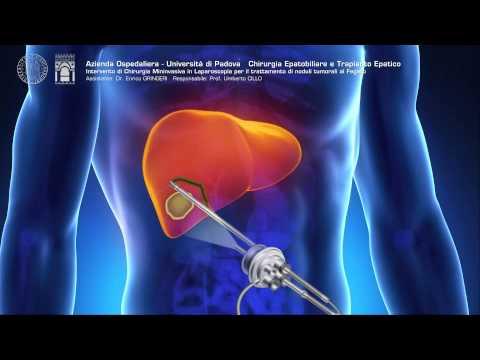Intervento di Chirurgia Mininvasiva in Laparoscopia per noduli al Fegato