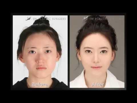Пластическая хирургия в Корее / До и после / Plastic Surgery in Korea / Before and After HD