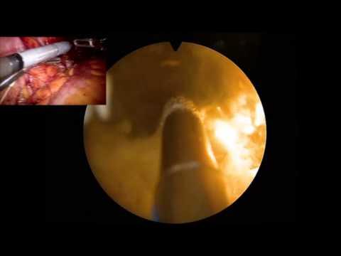 Schiefelbein: Greenlightlaser-Vaporisation der Prostata
