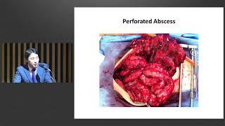 제8회 염증성 장질환 센터 심포지엄 : Ostomy in IBD: When to creat? How to manage complications? When to reverse? 미리보기