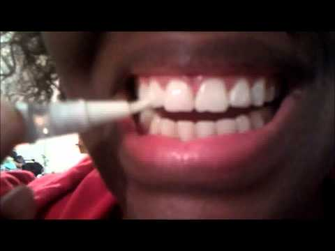 Teeth Whitening Pens