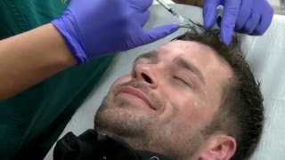 Botox Treatment - Male Patient