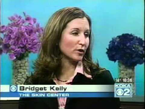 Spider Vein and Stretchmark Treatment on KDKA