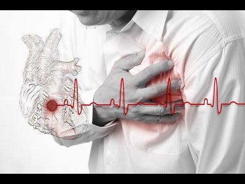 Инфаркт миокарда - как и почему происходит