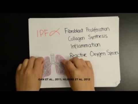 Idiopathic Pulmonary Fibrosis: Pirfenidone