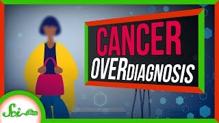 When You Have Cancer, But You're Fine: Cancer Overdiagnosis by  SciShow