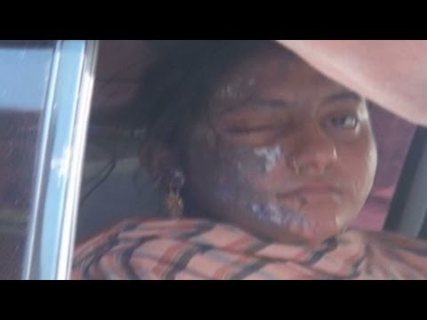 Video Pakistani actress severely burned in acid attack download in MP3, 3GP, MP4, WEBM, AVI, FLV January 2017