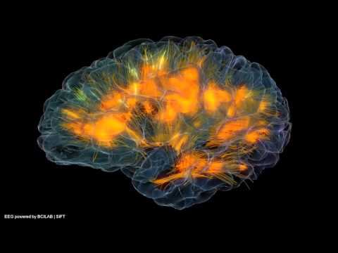 Realistic 3D brain visualization