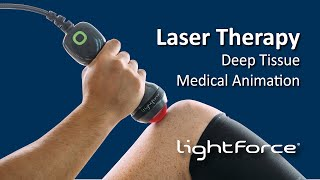 Light Force Deep Tissue Laser Therapy