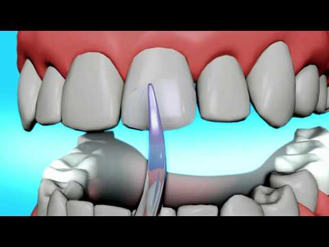 BONDING - ACE Dental Education- Dental Bonding: http://www.acedentalresource.com/dental-procedures/cosmetic-dentistry/teeth-bonding/ Tooth bonding is the application o...